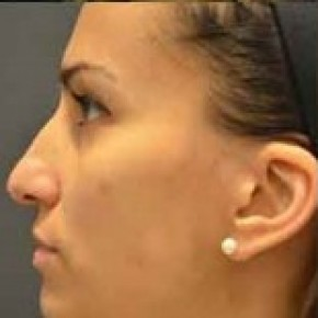 Before Photo - Nose Surgery - Case #14829 - Rhinoplasty  - Lateral View