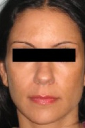 Before Photo - Nose Surgery - Case #14830 - Rhinoplasty  - Frontal View