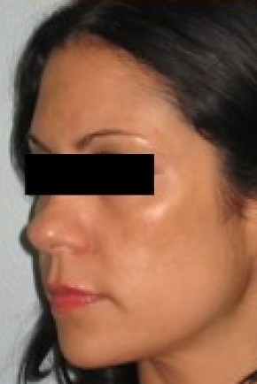 Before Photo - Nose Surgery - Case #14830 - Rhinoplasty  - Oblique View