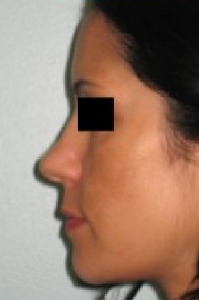 Before Photo - Nose Surgery - Case #14830 - Rhinoplasty  - Lateral View