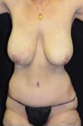 After Photo - Tummy Tuck - Case #14834 - Frontal View