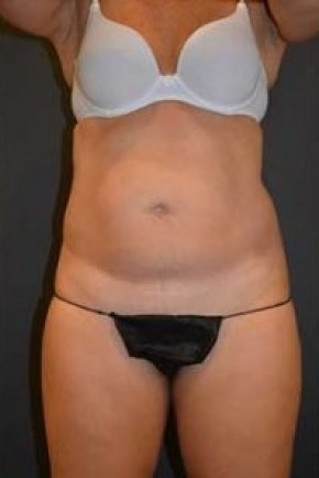 Before Photo - Tummy Tuck - Case #14836 - Frontal View
