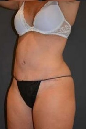 After Photo - Tummy Tuck - Case #14836 - Oblique View