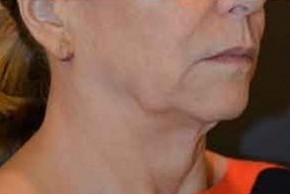Before Photo - Facelift - Case #14839 - Traditional Facelift  - Oblique View