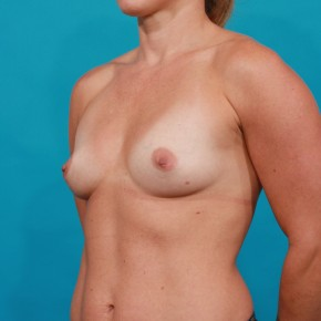 Before Photo - Breast Augmentation - Case #14840 - Silicone Breast Augmentation - Oblique View