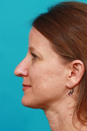 After Photo - Nose Surgery - Case #14841 - Open Septorhinoplasty - Lateral View