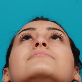 Before Photo - Nose Surgery - Case #14842 - Open Septorhinoplasty - Worm's Eye View