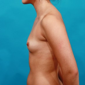 Before Photo - Breast Augmentation - Case #14844 - Sientra Breast Implants - Lateral View