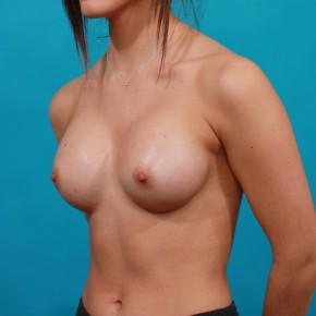 After Photo - Breast Augmentation - Case #14844 - Sientra Breast Implants - Oblique View