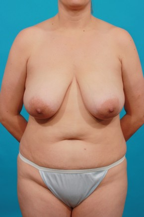 Before Photo - Mommy Makeover - Case #14846 - TT / BL - Frontal View