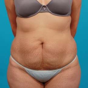 Before Photo - Tummy Tuck - Case #14848 - Abdominoplasty with Flank Liposuction - Frontal View