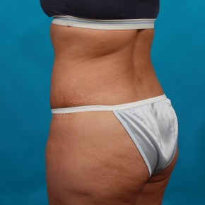 After Photo - Tummy Tuck - Case #14848 - Abdominoplasty with Flank Liposuction - Posterior Oblique View