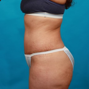 After Photo - Tummy Tuck - Case #14848 - Abdominoplasty with Flank Liposuction - Lateral View