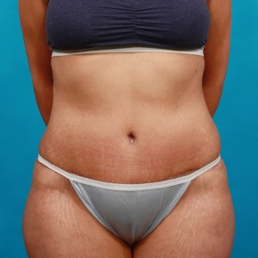 After Photo - Tummy Tuck - Case #14848 - Abdominoplasty with Flank Liposuction - Frontal View