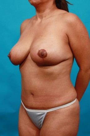 After Photo - Mommy Makeover - Case #14849 - TT / BL - Oblique View