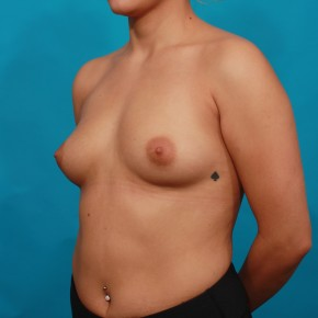 Before Photo - Breast Augmentation - Case #14850 - Silicone Breast Augmentation - Oblique View