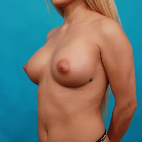 After Photo - Breast Augmentation - Case #14850 - Silicone Breast Augmentation - Oblique View