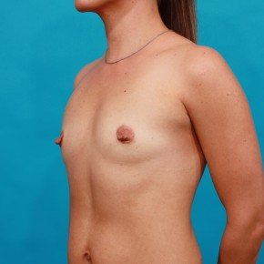 Before Photo - Breast Augmentation - Case #14851 - Shaped Breast Augmentation - Oblique View