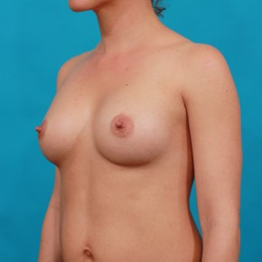 After Photo - Breast Augmentation - Case #14851 - Shaped Breast Augmentation - Oblique View