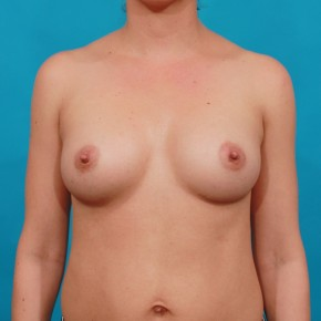 After Photo - Breast Augmentation - Case #14851 - Shaped Breast Augmentation - Frontal View
