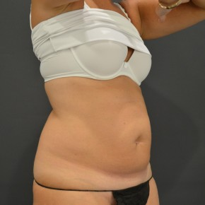 Before Photo - Liposuction - Case #14838 - Oblique View