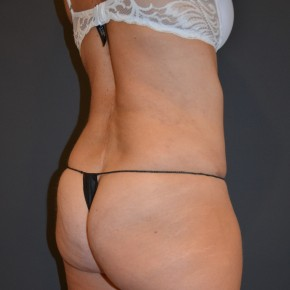 After Photo - Liposuction - Case #14838 - Posterior Oblique View