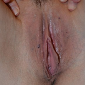 Before Photo - Vaginal Rejuvenation - Case #14863 - Labiaplasty  - Frontal View