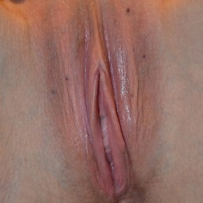 After Photo - Vaginal Rejuvenation - Case #14863 - Labiaplasty  - Frontal View