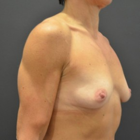 Before Photo - Breast Augmentation - Case #14865 - Oblique View