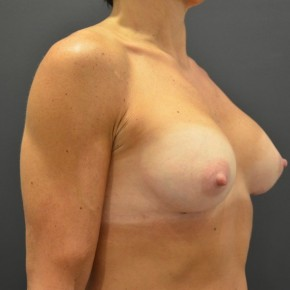 After Photo - Breast Augmentation - Case #14865 - Oblique View