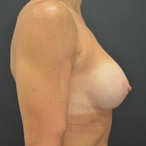 After Photo - Breast Augmentation - Case #14865 - Lateral View