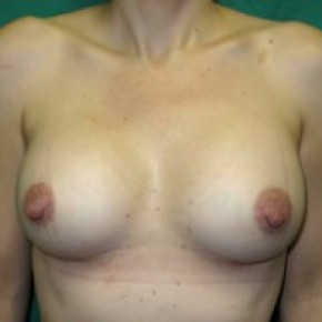 After Photo - Breast Augmentation - Case #14866 - Frontal View