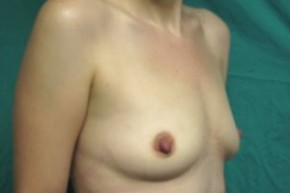 Before Photo - Breast Augmentation - Case #14866 - Oblique View