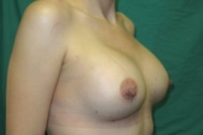 After Photo - Breast Augmentation - Case #14866 - Oblique View