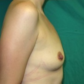 Before Photo - Breast Augmentation - Case #14866 - Lateral View