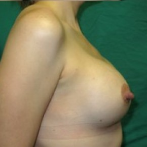 After Photo - Breast Augmentation - Case #14866 - Lateral View