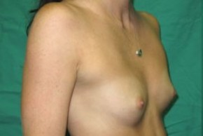 Before Photo - Breast Augmentation - Case #14867 - Oblique View