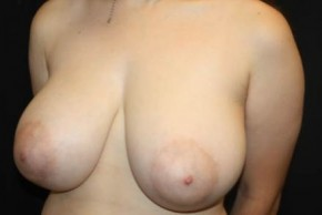 Before Photo - Breast Reduction - Case #14895 - Breast Reduction - 15 year old female - Oblique View