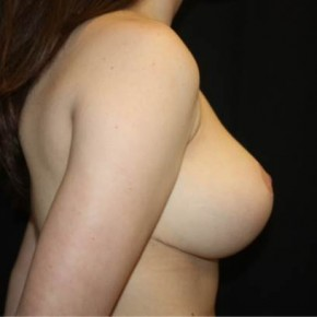After Photo - Breast Reduction - Case #14895 - Breast Reduction - 15 year old female - Lateral View