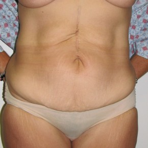 Before Photo - Tummy Tuck - Case #14950 - Massive weight loss patient with Fleur-de-Lis abdominoplasty - Frontal View