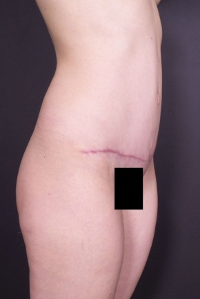 After Photo - Tummy Tuck - Case #15099 - Abdominoplasty - Oblique View