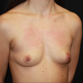 Before Photo - Breast Augmentation - Case #15108 - Breast Augmentation - 32 year old female - Oblique View