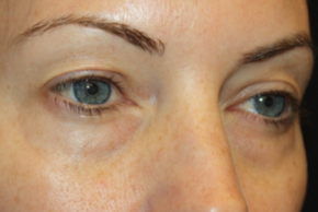 Before Photo - Eyelid Surgery - Case #15109 - Blepharoplasty - Upper and Lower Lids - 42 year old female - Oblique View