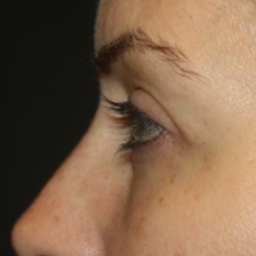 After Photo - Eyelid Surgery - Case #15109 - Blepharoplasty - Upper and Lower Lids - 42 year old female - Lateral View