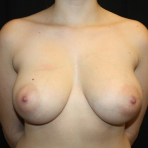Before Photo - Breast Lift - Case #15110 - Breast Lift with Reduction - 23 year old female - Frontal View