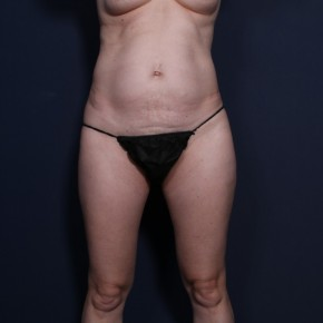 Before Photo - Tummy Tuck - Case #15115 -  Abdominoplasty Post-Op 2 Months - Frontal View