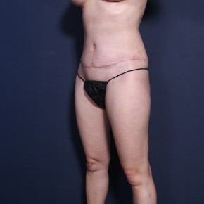 After Photo - Tummy Tuck - Case #15115 -  Abdominoplasty Post-Op 2 Months - Oblique View