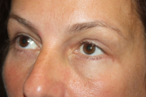 After Photo - Eyelid Surgery - Case #15122 - Blepharoplasty and Browlift - 49 year old female - Oblique View
