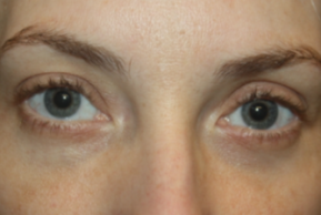 After Photo - Eyelid Surgery - Case #15123 - Blepharoplasty - Lower Lids Only - 34 year old female - Frontal View
