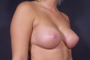 After Photo - Breast Augmentation - Case #15131 - Bilateral Subglandular Round SIlicone Implants - Oblique View